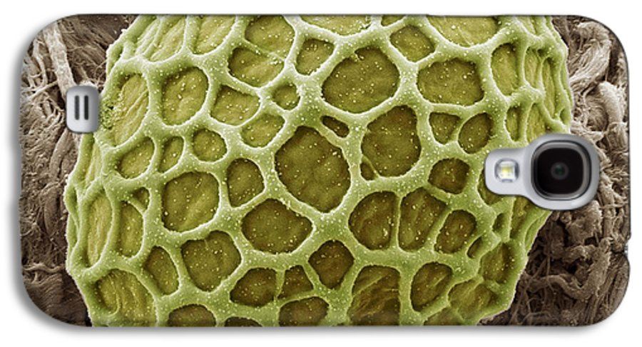 Alga Galaxy S4 Case featuring the photograph Freshwater Alga, Sem by Steve Gschmeissner