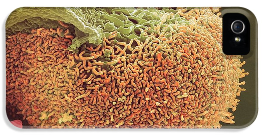 Abnormal IPhone 5 / 5s Case featuring the photograph Urine Infection, Sem by Steve Gschmeissner