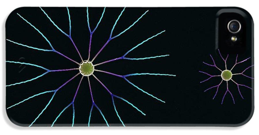 Diatom IPhone 5 / 5s Case featuring the photograph Diatom Algae, Sem by Steve Gschmeissner