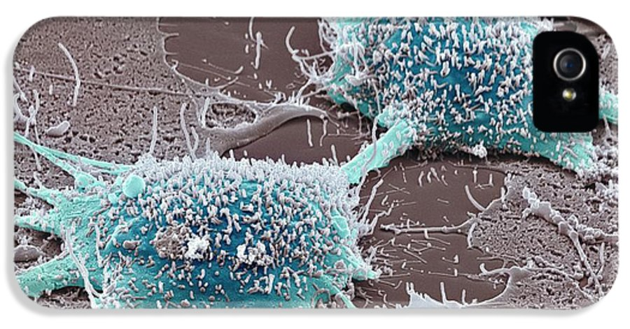 Abnormal IPhone 5 / 5s Case featuring the photograph Dividing Cancer Cell, Sem by Steve Gschmeissner