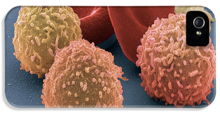 Blood Cells IPhone 5 / 5s Case featuring the photograph Human Blood Cells, Sem by Steve Gschmeissner