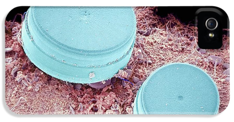Alga IPhone 5 / 5s Case featuring the photograph Diatoms, Sem by Susumu Nishinaga