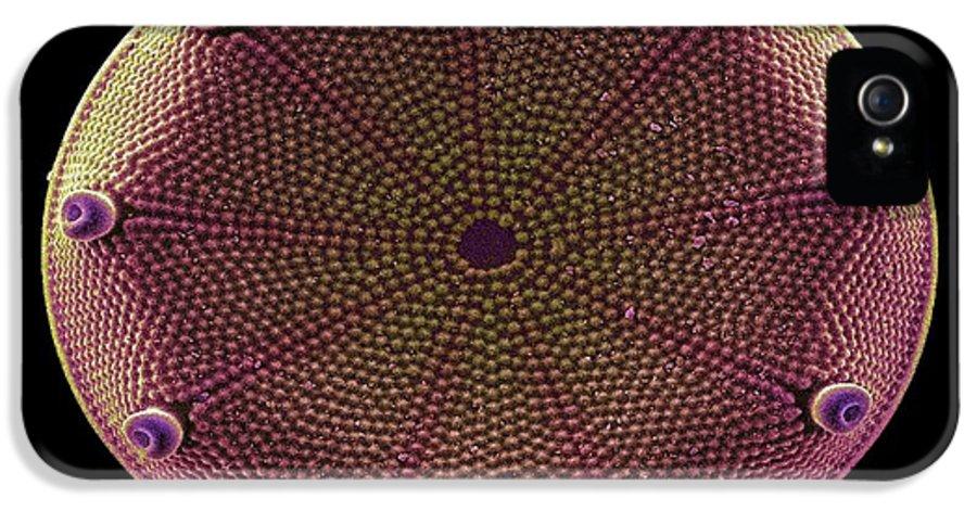 Diatom IPhone 5 / 5s Case featuring the photograph Diatom Alga, Sem by Steve Gschmeissner