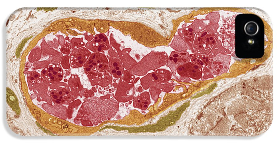 Disorder IPhone 5 / 5s Case featuring the photograph Abnormal Blood Clot, Tem by Steve Gschmeissnercarol Upton