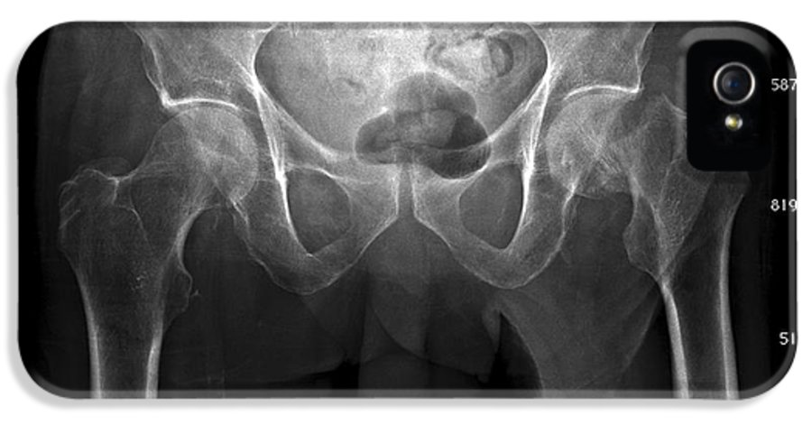 Disorder IPhone 5 / 5s Case featuring the photograph Hip Fracture, Digital X-ray by Du Cane Medical Imaging Ltd