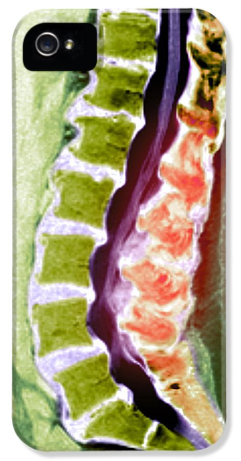 Disorder IPhone 5 / 5s Case featuring the photograph Spine Degeneration, Mri Scan by Du Cane Medical Imaging Ltd