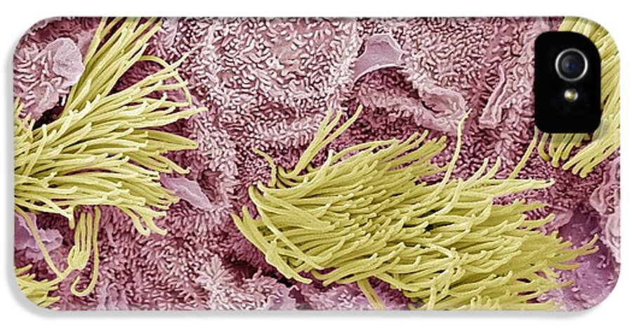 Abnormal IPhone 5 / 5s Case featuring the photograph Uterine Cancer, Sem by Steve Gschmeissner