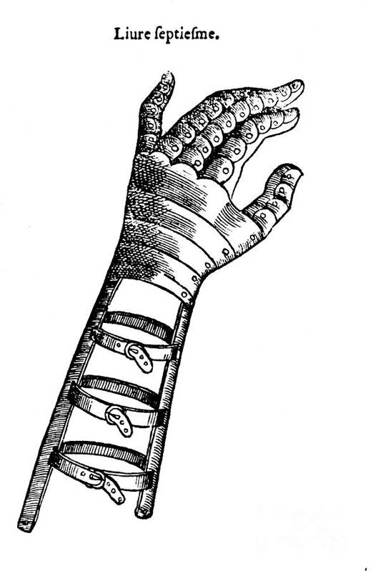 Medical Poster featuring the photograph Artificial Hand Designed By Ambroise by Science Source