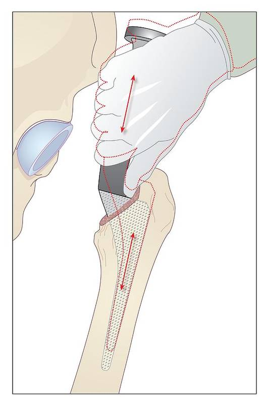 Bone Poster featuring the photograph Hip Replacement, Artwork by Peter Gardiner