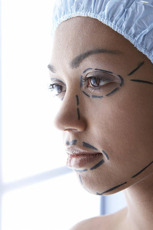 Human Poster featuring the photograph Facelift Surgery Markings by Adam Gault
