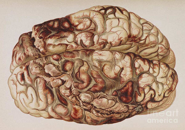 Science Poster featuring the photograph Encircling Gunshot-wound In Brain, 1898 by Science Source