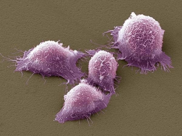 Cervical Cancer Poster featuring the photograph Cervical Cancer Cells, Sem by Steve Gschmeissner