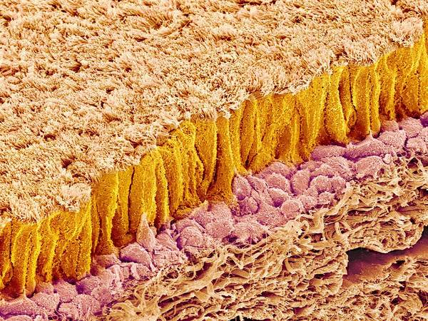 Epithelium Poster featuring the photograph Trachea Lining, Sem by Science Photo Library