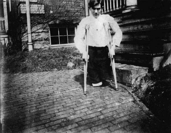 1910s Poster featuring the photograph Child Labor, Frank P., Legs Were Cut by Everett