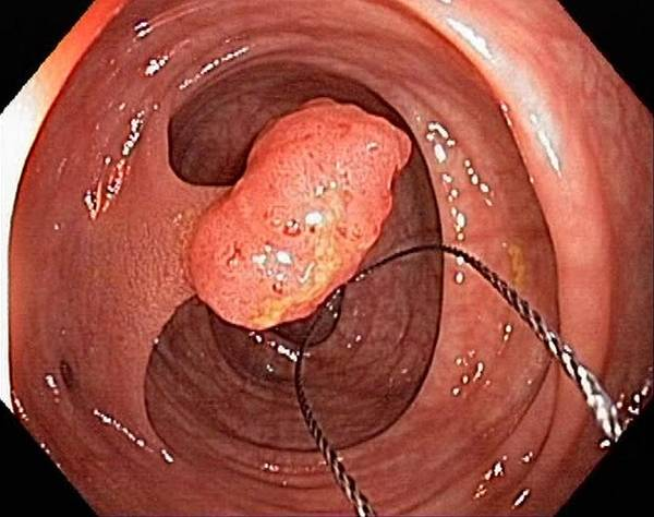 Colonoscope Poster featuring the photograph Tubular Polyp In The Colon by Gastrolab