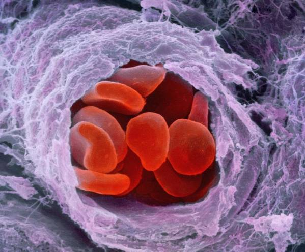 Magnified Image Poster featuring the photograph Red Blood Cells by Professors P.m. Motta & S. Correr