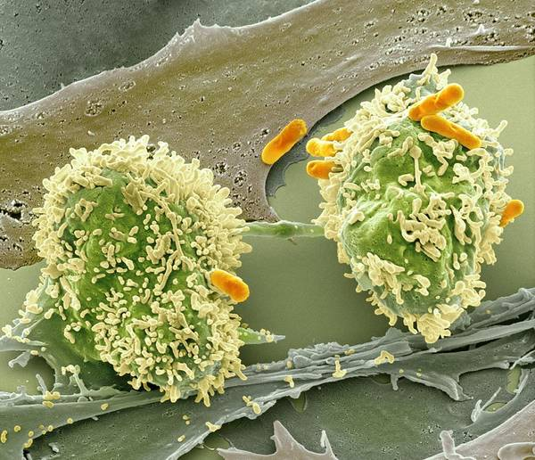 Abnormal Poster featuring the photograph Dividing Cancer Cell, Sem by Science Photo Library