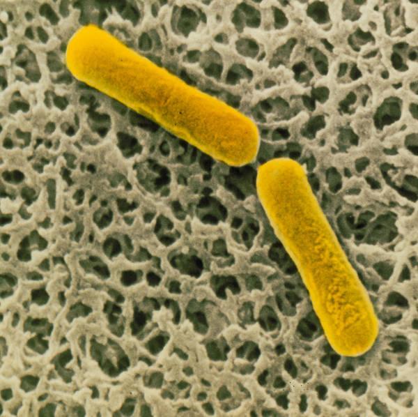 Clostridium Botulinum Poster featuring the photograph Clostridium Botulinum Bacteria by Cnri