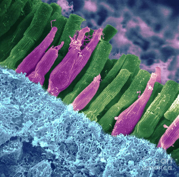 Scanning Electron Micrograph Poster featuring the photograph Rods And Cones In Retina by Omikron