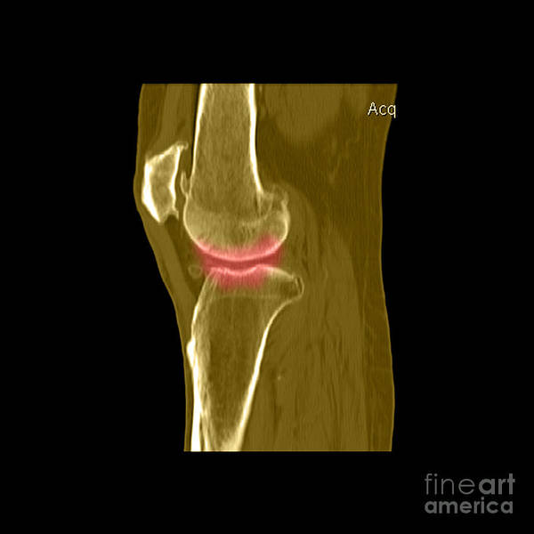 Joint Poster featuring the photograph Knee Showing Osteoporosis by Medical Body Scans