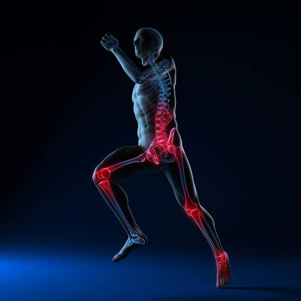 Artwork Poster featuring the photograph Running Injuries, Conceptual Artwork by Sciepro