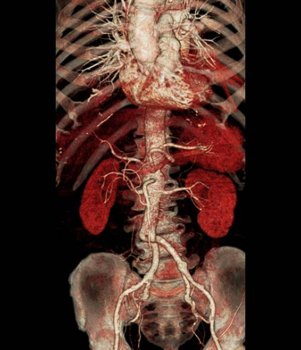 3-d Poster featuring the photograph Aortic Aneurysm Ct Scan by Zephyr