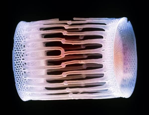 Diatom Poster featuring the photograph Diatom Alga, Sem by Steve Gschmeissner