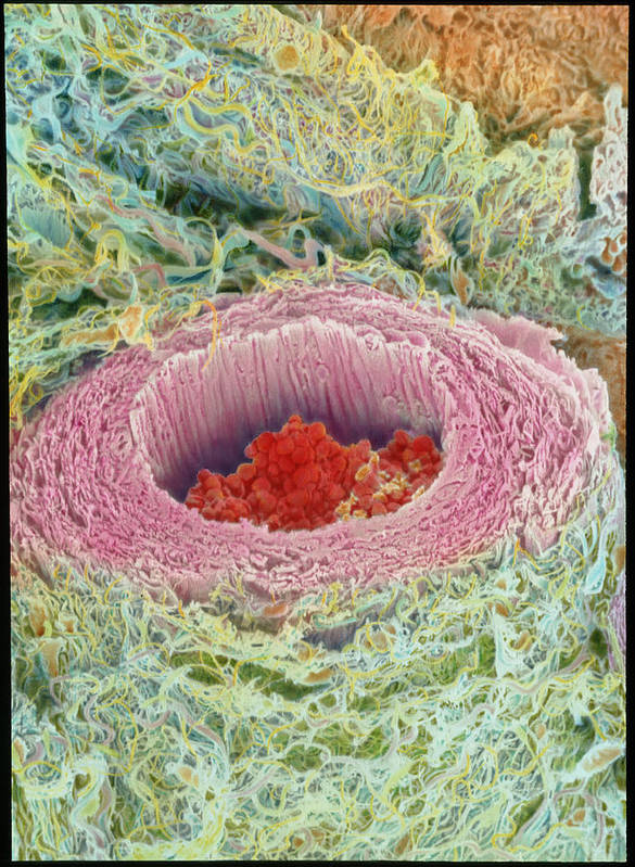 Magnified Image Poster featuring the photograph Coloured Sem Of Section Through A Human Arteriole by Steve Gschmeissner