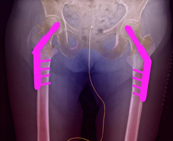Coloured X-ray Poster featuring the photograph Fixed Double Hip Fracture (image 2 Of 2) by Du Cane Medical Imaging Ltd