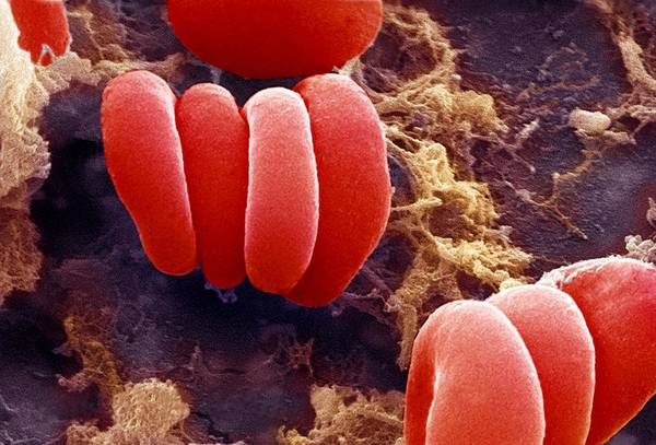 Erythrocyte Poster featuring the photograph Red Blood Cells, Sem by Ami Images