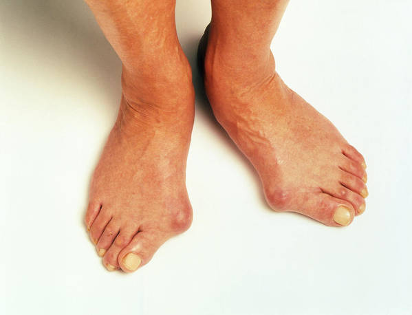 Bunion Poster featuring the photograph Bunions by Victor De Schwanberg
