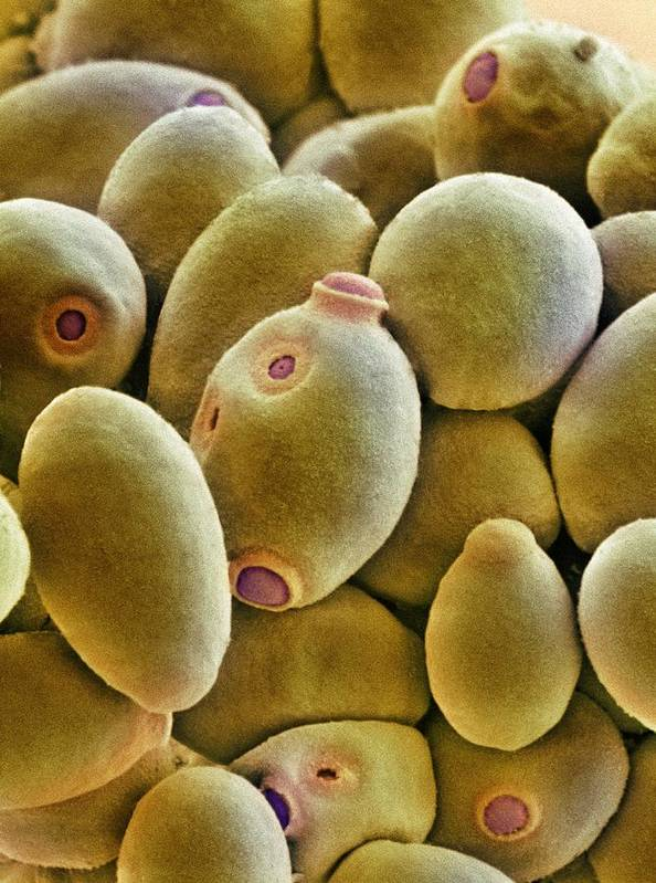 Brewer's Yeast Print featuring the photograph Yeast Cells, Sem by Thomas Deerinck, Ncmir