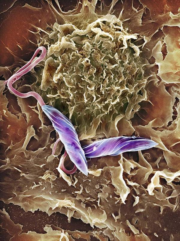Leishmania Mexicana Print featuring the photograph Macrophage Attacking A Foreign Body, Sem by