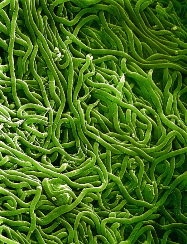 Borrelia Print featuring the photograph Borrelia Bacteria, Sem by Biomedical Imaging Unit, Southampton General Hospital