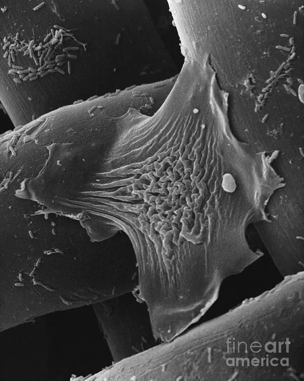 B&w Print featuring the photograph Amoeba Crawling On Nylon Mesh Sem by David M. Phillips