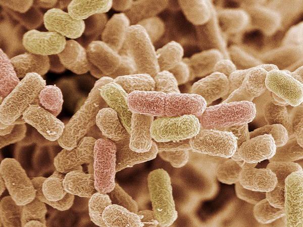 E. Coli Print featuring the photograph E. Coli Bacteria, Sem by Steve Gschmeissner