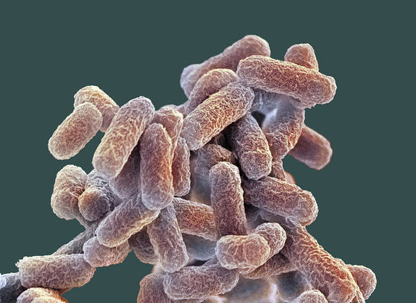 Escherichia Coli Print featuring the photograph E. Coli Bacteria, Sem by Steve Gschmeissner