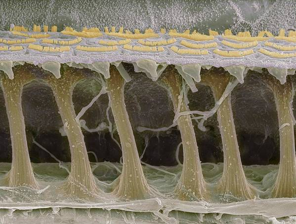 Electron Microscope Print featuring the photograph Inner Ear Hair Cells, Sem by Steve Gschmeissner