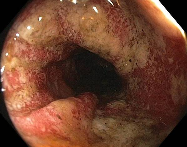 Endoscope View Print featuring the photograph Ulcerative Colitis In The Sigmoid Colon by Gastrolab