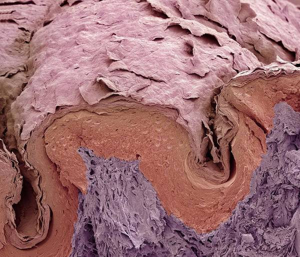 Scanning Electron Micrograph Print featuring the photograph Finger Skin, Sem by Science Photo Library