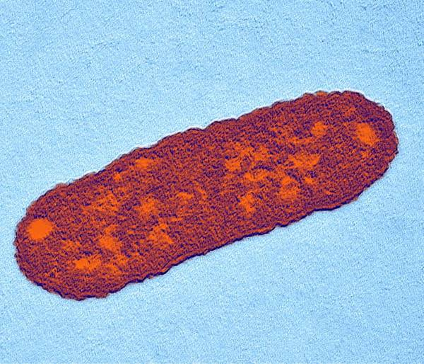 Salmonella Sp. Print featuring the photograph Salmonella Bacterium, Tem by Dr Klaus Boller