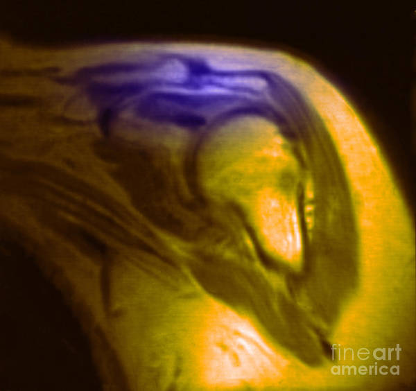 Magnetic Resonance Imaging Print featuring the photograph Mri Of Shoulder With Impingement by Science Source