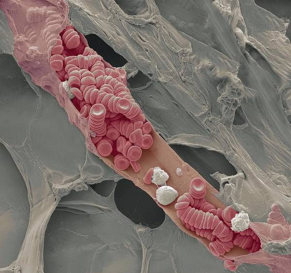 Electron Microscope Print featuring the photograph Ruptured Venule, Sem by Steve Gschmeissner