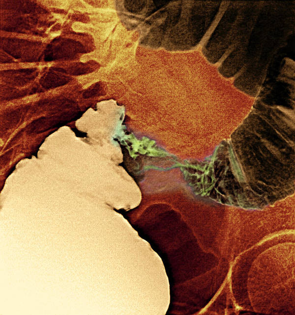Medicine Print featuring the photograph Colon Cancer, X-ray by Du Cane Medical Imaging Ltd