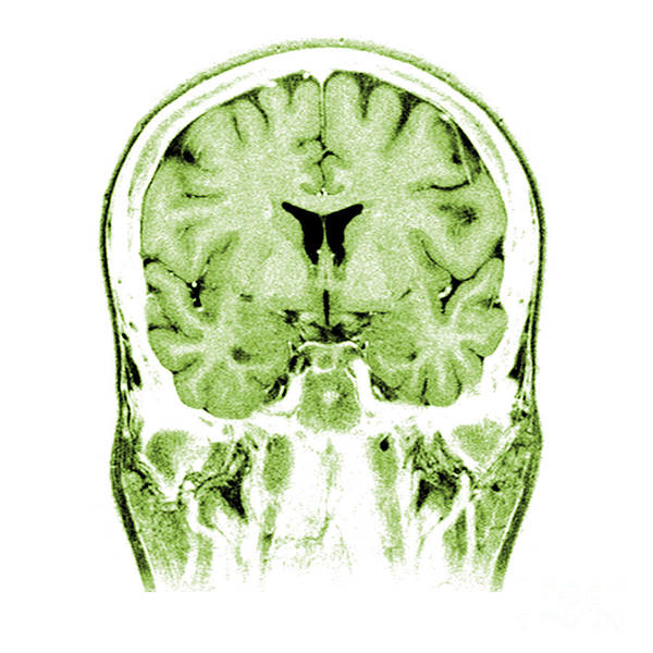 Normal Print featuring the photograph Normal Coronal Mri Of The Brain by Medical Body Scans