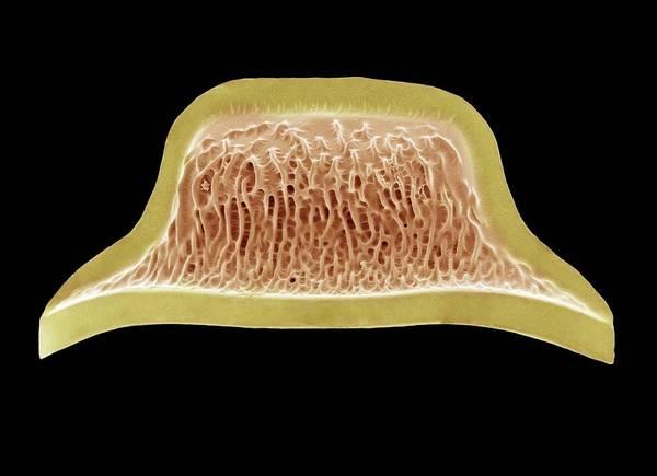 Alga Print featuring the photograph Diatom, Sem by Steve Gschmeissner