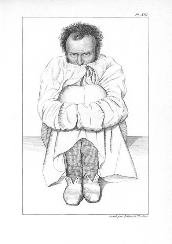 Human Print featuring the photograph Psychiatric Patient, 19th Century by King's College London
