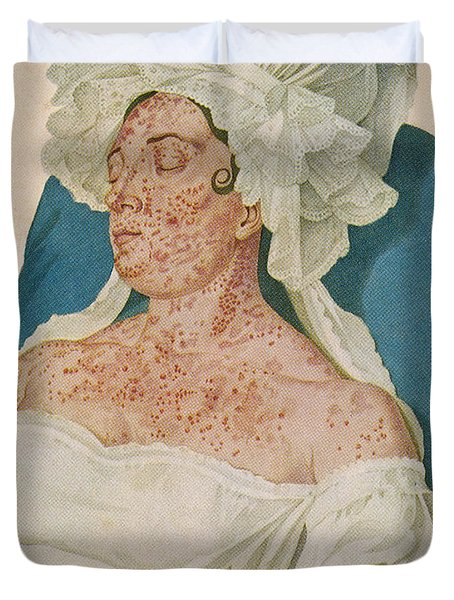 Scarlet Fever Duvet Cover by Science Source