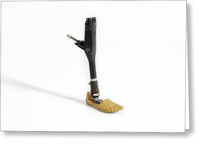 A Prosthetic Leg Greeting Card by Gregory Davies
