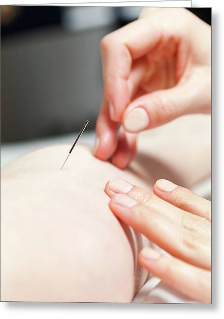 Acupuncture Treatment Greeting Card by Thomas Fredberg